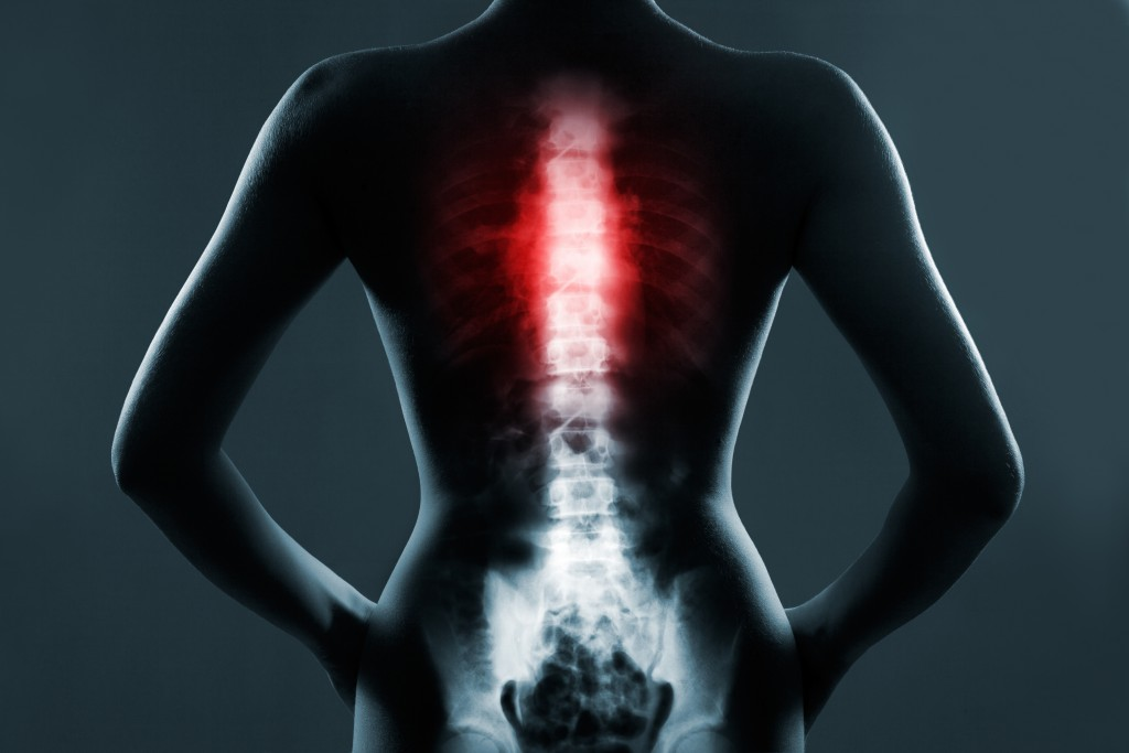 spine pain William Capicotto buffalo ny spine doctor