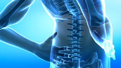 Signs of a Lumbar Herniated Disc