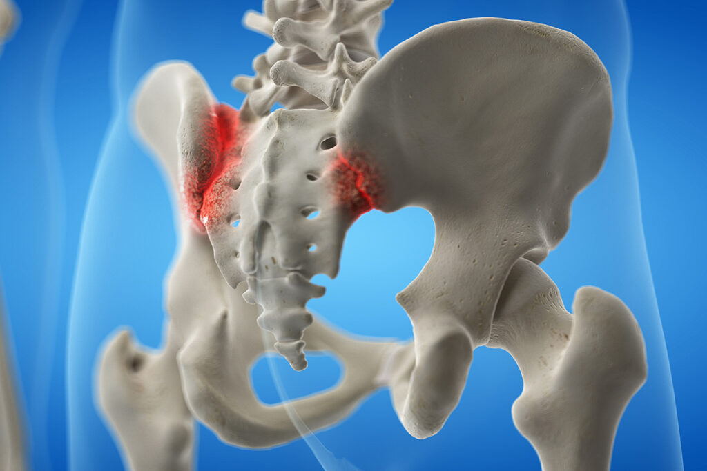 William Capicotto, spinal surgeon buffalo, buffalo spine surgery, Sacroiliac Joint Injection, pelvic pain